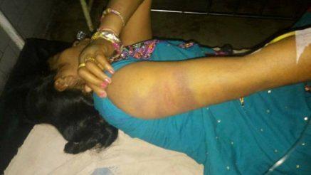 पुलिस ने खेला हैवानियत का नंगा नाच, महिला के निजी अंगों को रायफल के कुंदे से कूटा