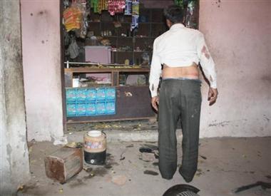 मेरठ के कंचनपुर घोपला में जातीय संघर्ष, फायरिंग-पथराव में 17 घायल