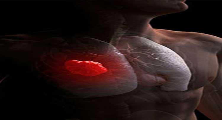 यह छोटा सा बीज कैंसर जैसी खतरनाक बीमारी से बचाता है