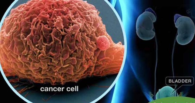 ये लक्षण होते हैं ब्लैडर कैंसर के संकेत, ऐसे करें बचाव