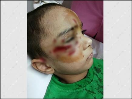 MP के भोपाल में डॉग बाइट का शिकार हुआ बच्चा, करानी पड़ी सर्जरी
