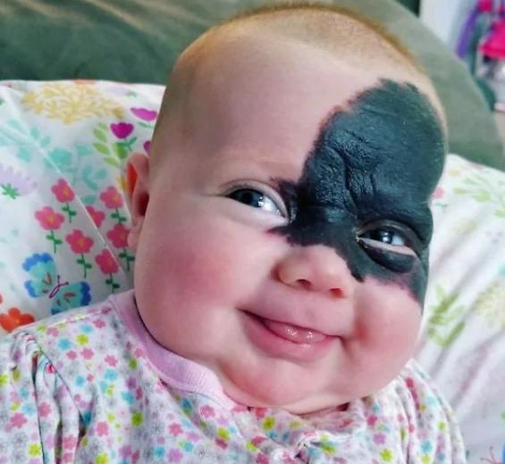बच्चे की ऐसी तस्वीर देखकर सोशल मीडिया ने कही ये बड़ी बात...