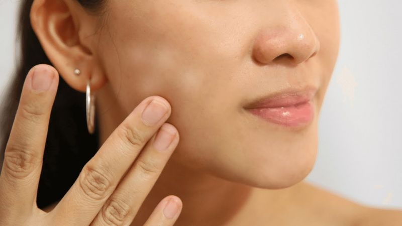Photo of चेहरे के सफ़ेद दागों को इन तरीकों से कर सकते हैं दूर