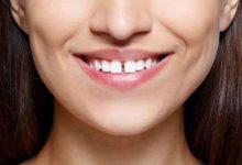 Photo of अगर आपके दांतों में भी हैं गैप, तो एक बार जरूर पढे ले ये खबर…