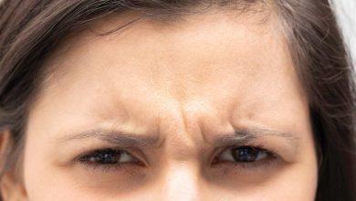 Photo of माथे के अनचाहे बालों से छुटकारा पाने के लिए अपनाएं ये घरेलू नुस्खे